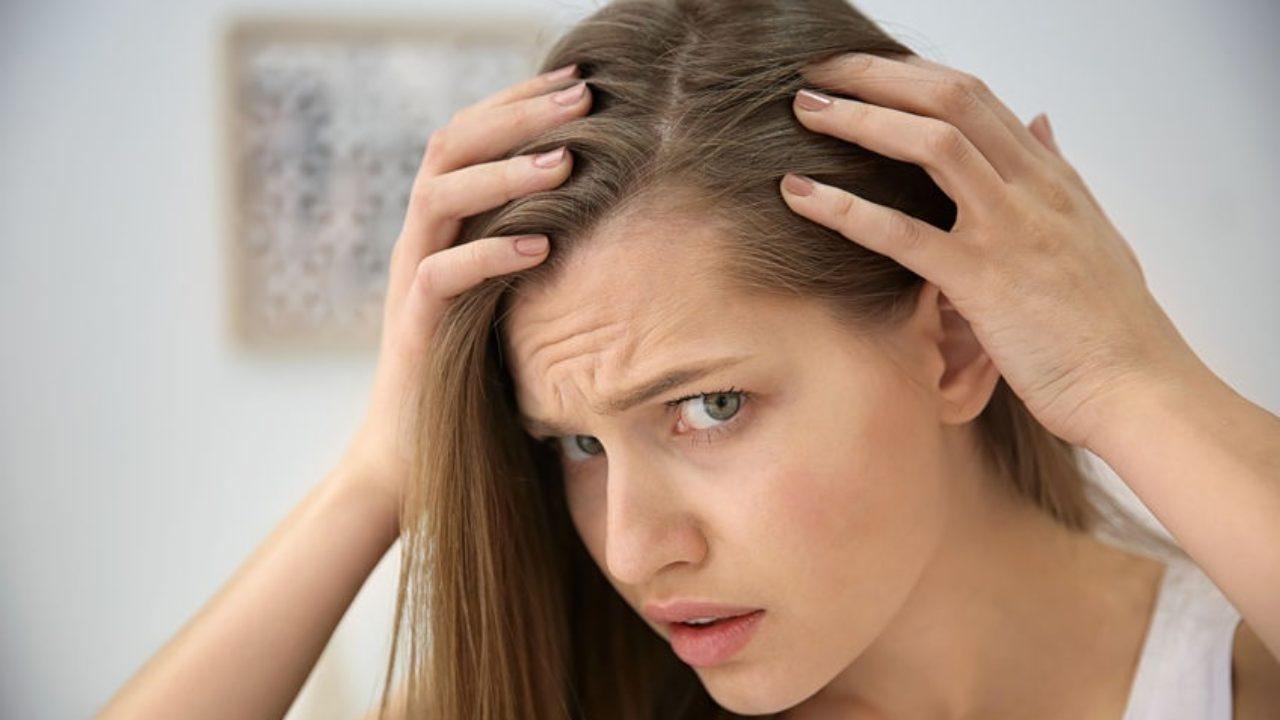 caduta capelli donne rimedi naturali